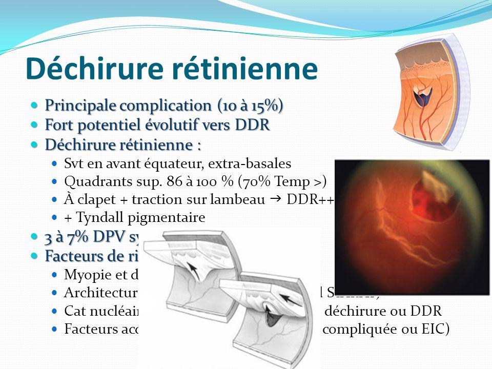 Déchirure rétinienne Principale complication (10 à 15%) Principale complication (10 à 15%) Fort potentiel évolutif vers DDR Fort potentiel évolutif ve