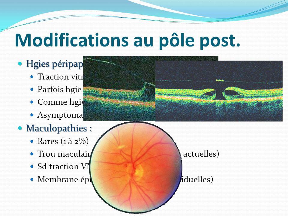 Modifications au pôle post. Hgies péripapillaires Hgies péripapillaires Traction vitréo-papillaire trauma capillaires superficiels Parfois hgie sous-r
