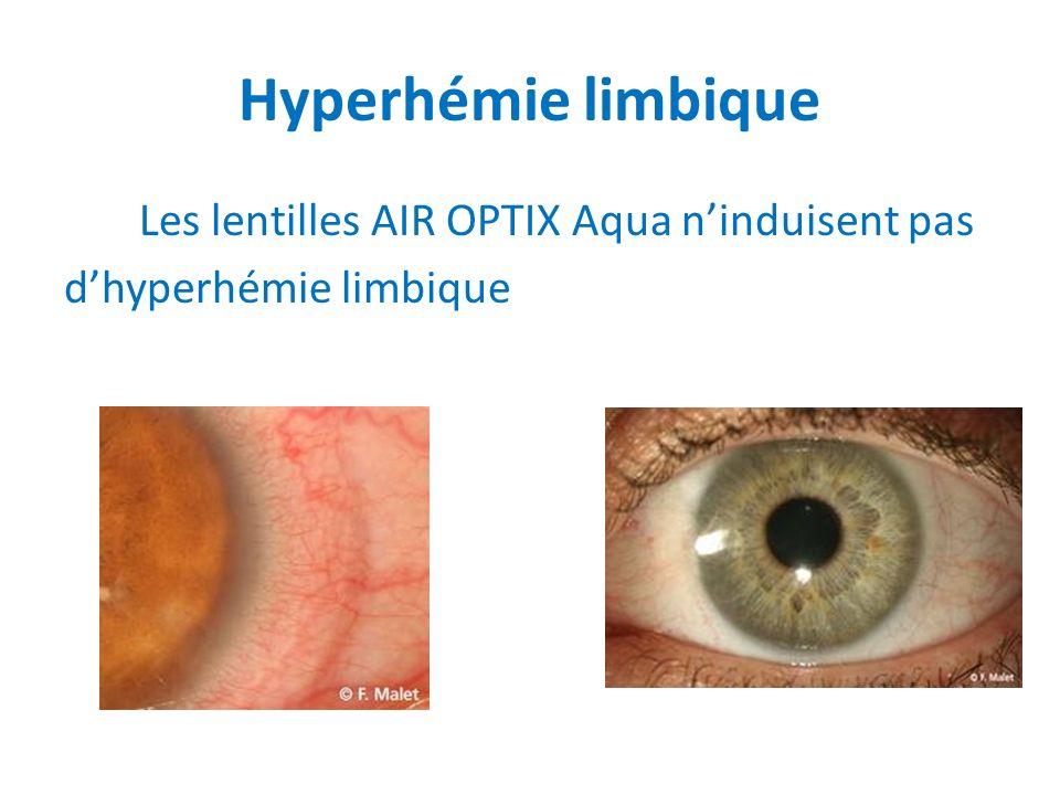 Hyperhémie limbique Les lentilles AIR OPTIX Aqua ninduisent pas dhyperhémie limbique