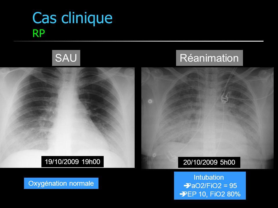 Cas clinique RP 20/10/2009 5h00 19/10/2009 19h00 SAURéanimation Oxygénation normale Intubation PaO2/FiO2 = 95 PEP 10, FiO2 80%