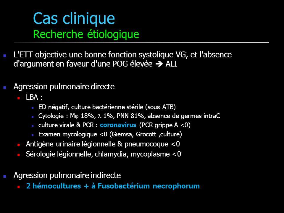 Cas clinique Recherche étiologique L ETT objective une bonne fonction systolique VG, et l absence d argument en faveur d une POG élevée ALI Agression pulmonaire directe LBA : ED négatif, culture bactérienne stérile (sous ATB) Cytologie : M 18%, 1%, PNN 81%, absence de germes intraC culture virale & PCR : coronavirus (PCR grippe A <0) Examen mycologique <0 (Giemsa, Grocott,culture) Antigène urinaire légionnelle & pneumocoque <0 Sérologie légionnelle, chlamydia, mycoplasme <0 Agression pulmonaire indirecte 2 hémocultures + à Fusobactérium necrophorum