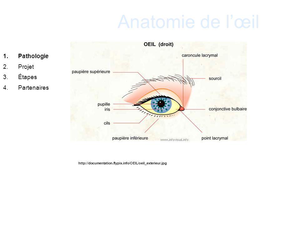 Anatomie de lœil 1.Pathologie 2.Projet 3.Étapes 4.Partenaires http://documentation.flypix.info/OEIL/oeil_exterieur.jpg