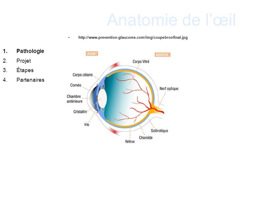 Anatomie de lœil http://www.prevention-glaucome.com/img/coupebronfinal.jpg 1.Pathologie 2.Projet 3.Étapes 4.Partenaires