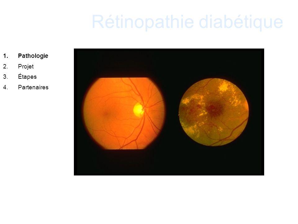Rétinopathie diabétique 1.Pathologie 2.Projet 3.Étapes 4.Partenaires