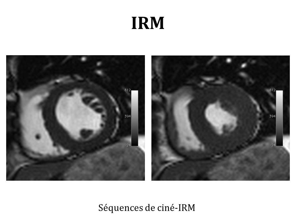 IRM Séquences de ciné-IRM