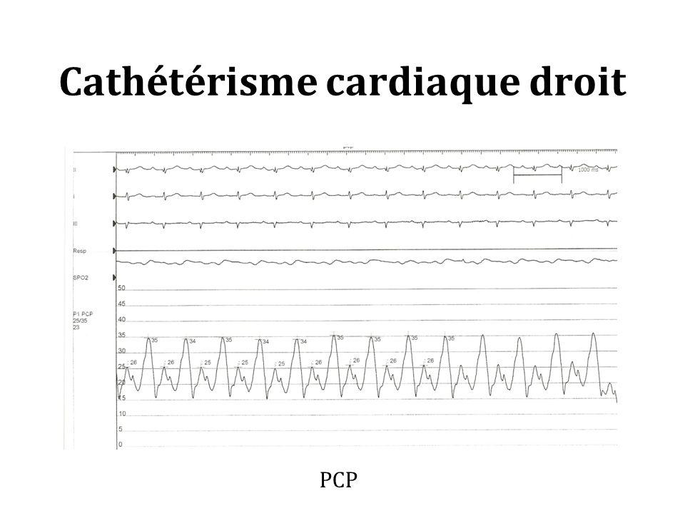 Cathétérisme cardiaque droit PCP