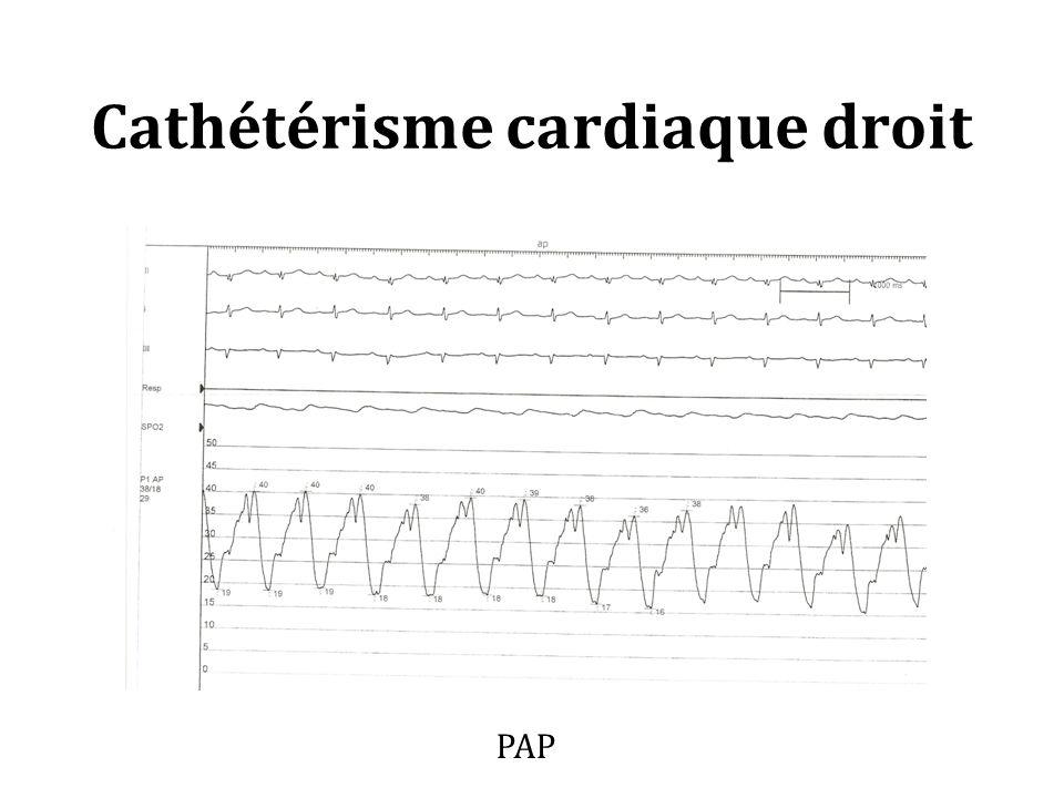 Cathétérisme cardiaque droit PAP