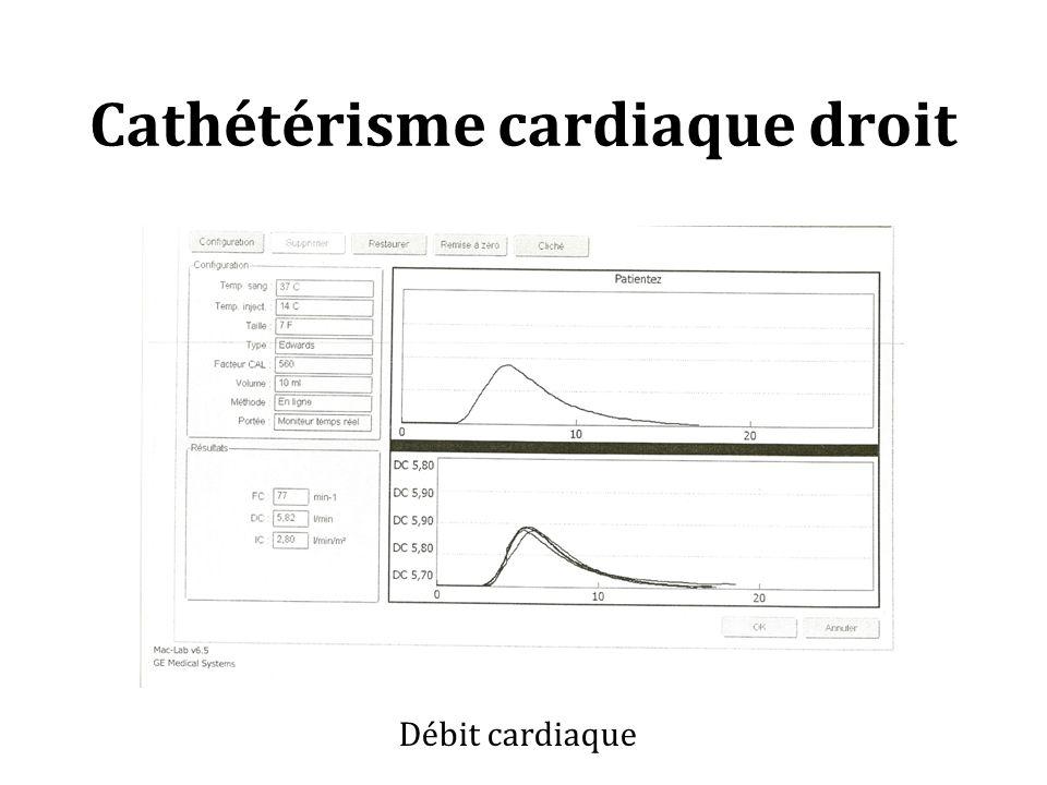 Cathétérisme cardiaque droit Débit cardiaque