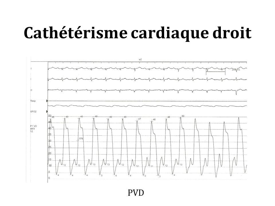 Cathétérisme cardiaque droit PVD