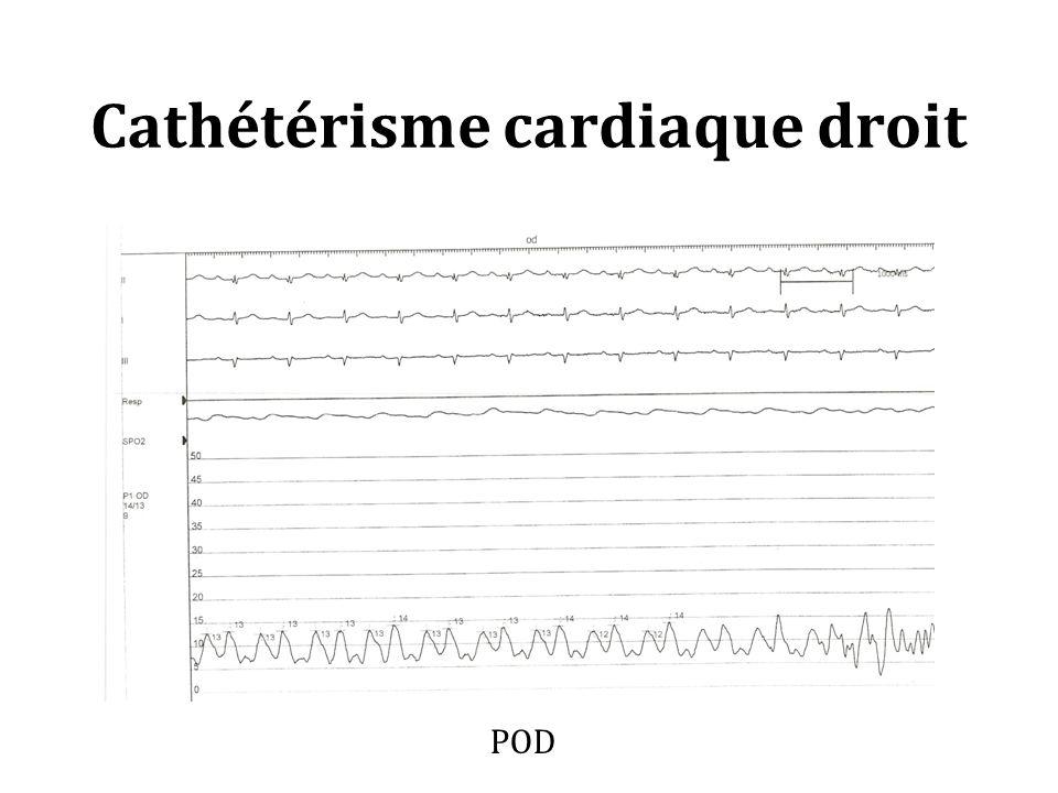 Cathétérisme cardiaque droit POD