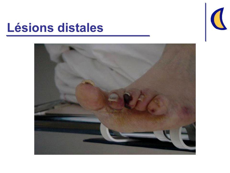 Lésions distales