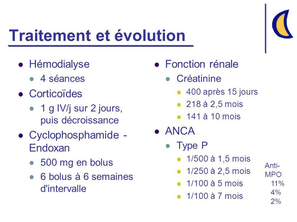 Traitement et évolution Hémodialyse 4 séances Corticoïdes 1 g IV/j sur 2 jours, puis décroissance Cyclophosphamide - Endoxan 500 mg en bolus 6 bolus à 6 semaines d intervalle Fonction rénale Créatinine 400 après 15 jours 218 à 2,5 mois 141 à 10 mois ANCA Type P 1/500 à 1,5 mois 1/250 à 2,5 mois 1/100 à 5 mois 1/100 à 7 mois Anti- MPO 11% 4% 2%