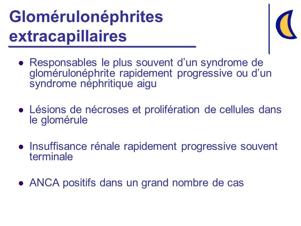 Glomérulonéphrites extracapillaires Responsables le plus souvent dun syndrome de glomérulonéphrite rapidement progressive ou dun syndrome néphritique