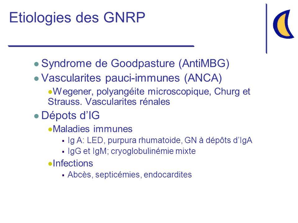Etiologies des GNRP Syndrome de Goodpasture (AntiMBG) Vascularites pauci-immunes (ANCA) Wegener, polyangéite microscopique, Churg et Strauss.
