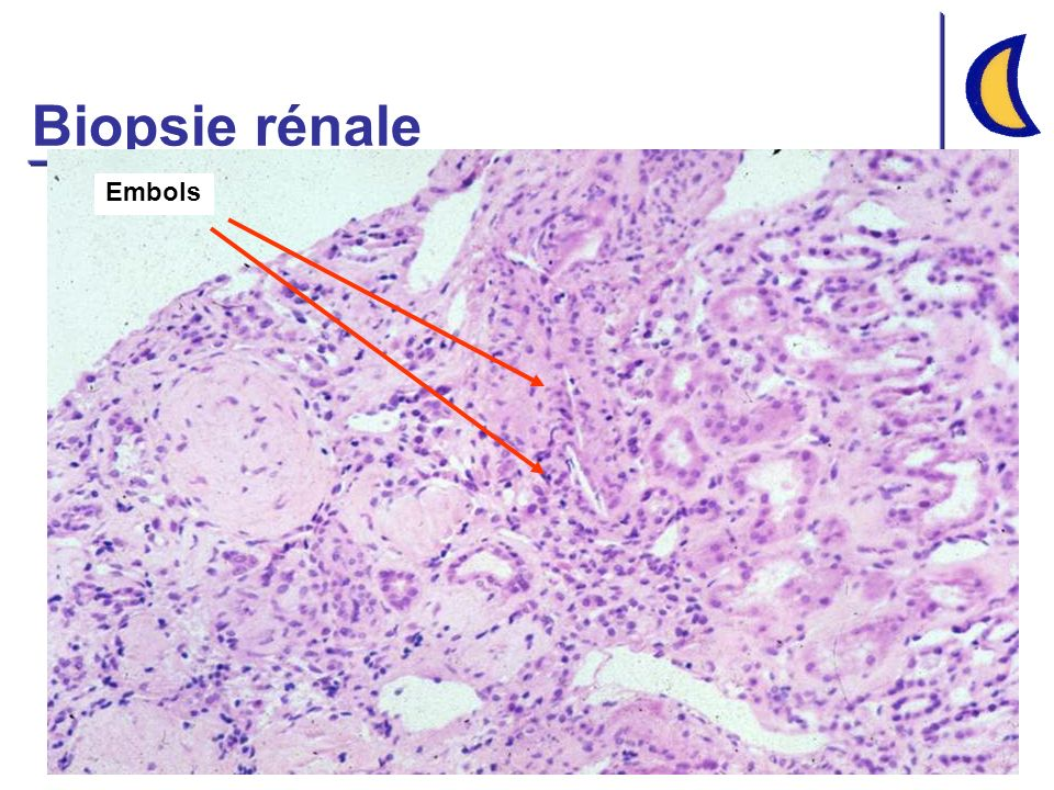 Insuffisance rénale aiguë Pré-rénale 30-60% Pré-rénale 30-60% Rénale 20-40% Rénale 20-40% Post-rénale 1-10% Post-rénale 1-10% Vasculaire Glomérulaire Interstitielle Tubulaire Ischémique Toxique Obstruction