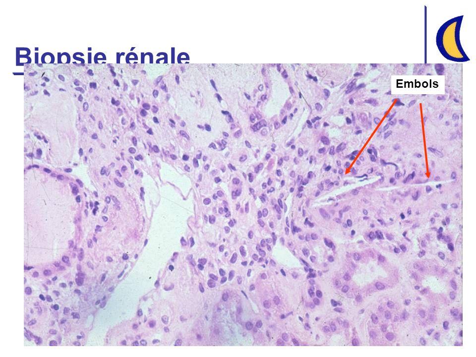 Biopsie rénale Embols