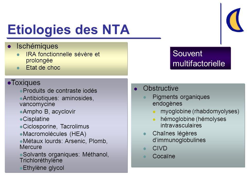 Etiologies des NTA Ischémiques IRA fonctionnelle sévère et prolongée Etat de choc Obstructive Pigments organiques endogènes myoglobine (rhabdomyolyses