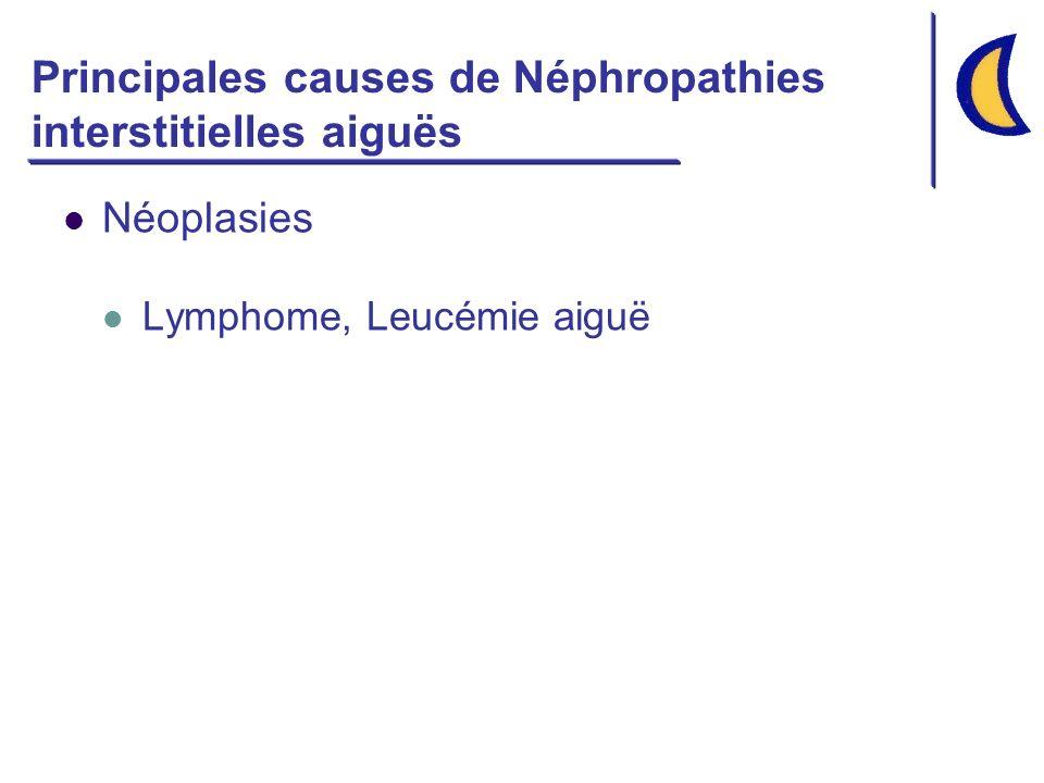 Principales causes de Néphropathies interstitielles aiguës Néoplasies Lymphome, Leucémie aiguë