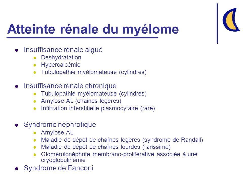 Atteinte rénale du myélome Insuffisance rénale aiguë Déshydratation Hypercalcémie Tubulopathie myélomateuse (cylindres) Insuffisance rénale chronique Tubulopathie myélomateuse (cylindres) Amylose AL (chaines légères) Infiltration interstitielle plasmocytaire (rare) Syndrome néphrotique Amylose AL Maladie de dépôt de chaînes légères (syndrome de Randall) Maladie de dépôt de chaînes lourdes (rarissime) Glomérulonéphrite membrano-proliférative associée à une cryoglobulinémie Syndrome de Fanconi