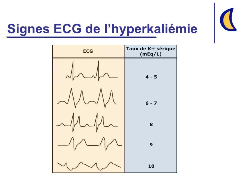Signes ECG de lhyperkaliémie