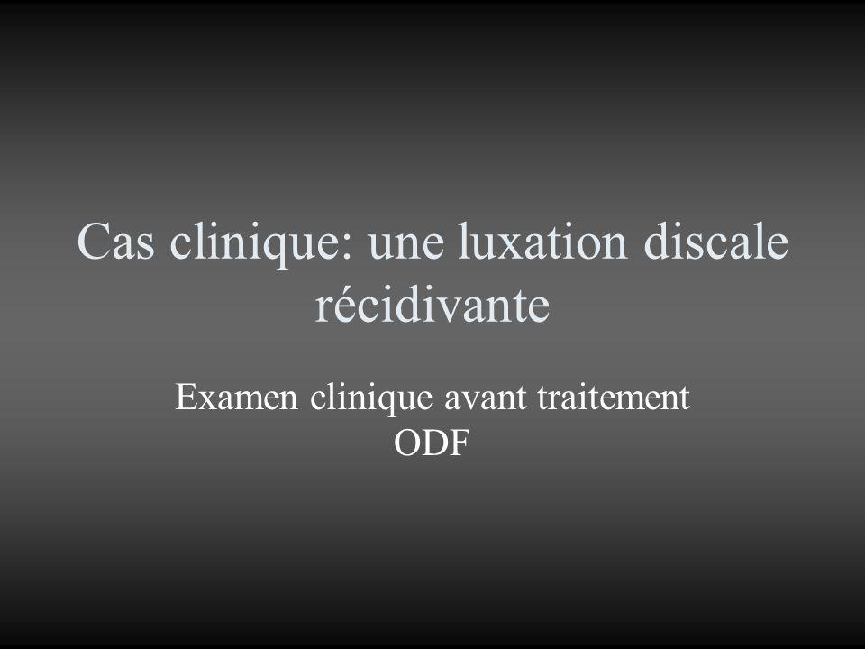 Cas clinique: une luxation discale récidivante Examen clinique avant traitement ODF