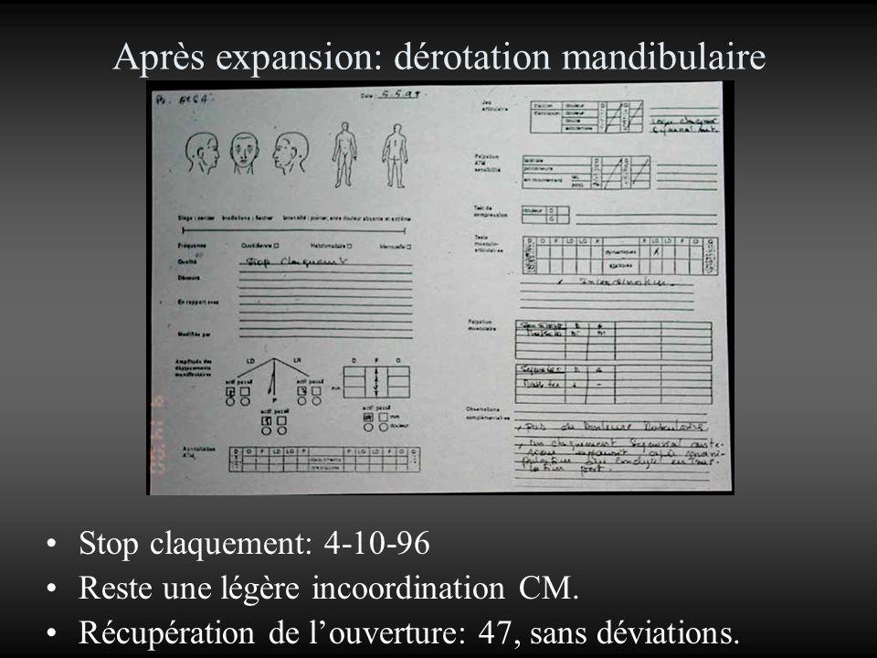 Après expansion: dérotation mandibulaire Stop claquement: 4-10-96 Reste une légère incoordination CM. Récupération de louverture: 47, sans déviations.