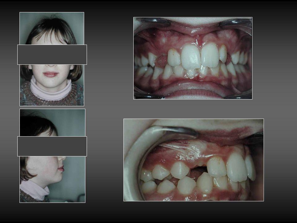 Orthodontie. Correction des axes de compensation.