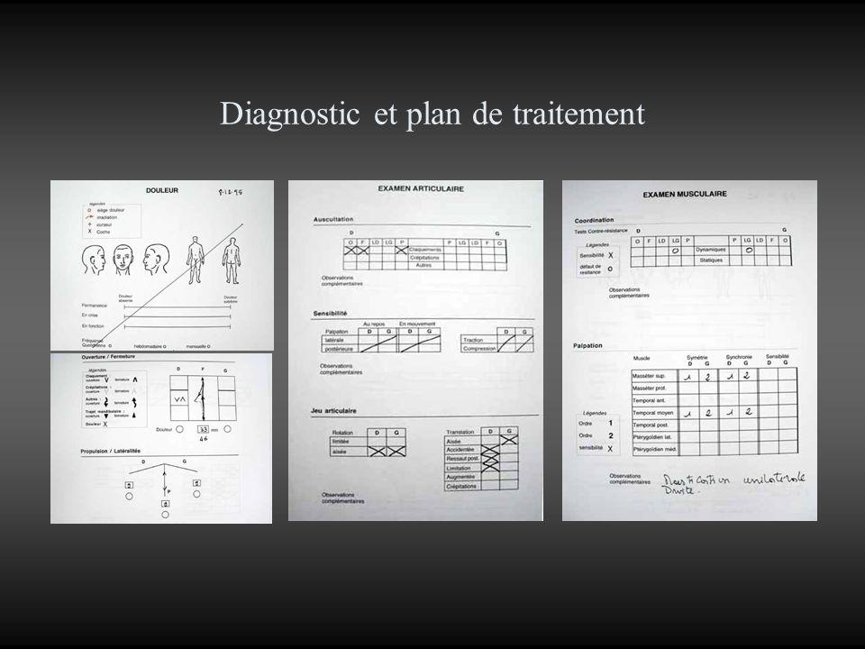Diagnostic Douleur: –Néant.ATM: –Luxation discale chronique droite.
