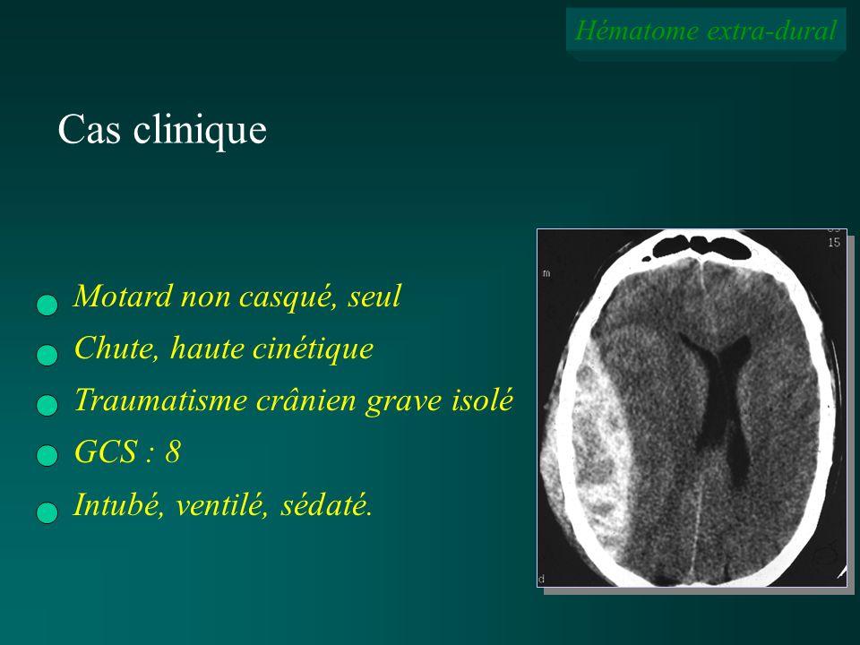 Hématome extra-dural Cas clinique Motard non casqué, seul Chute, haute cinétique Traumatisme crânien grave isolé GCS : 8 Intubé, ventilé, sédaté.