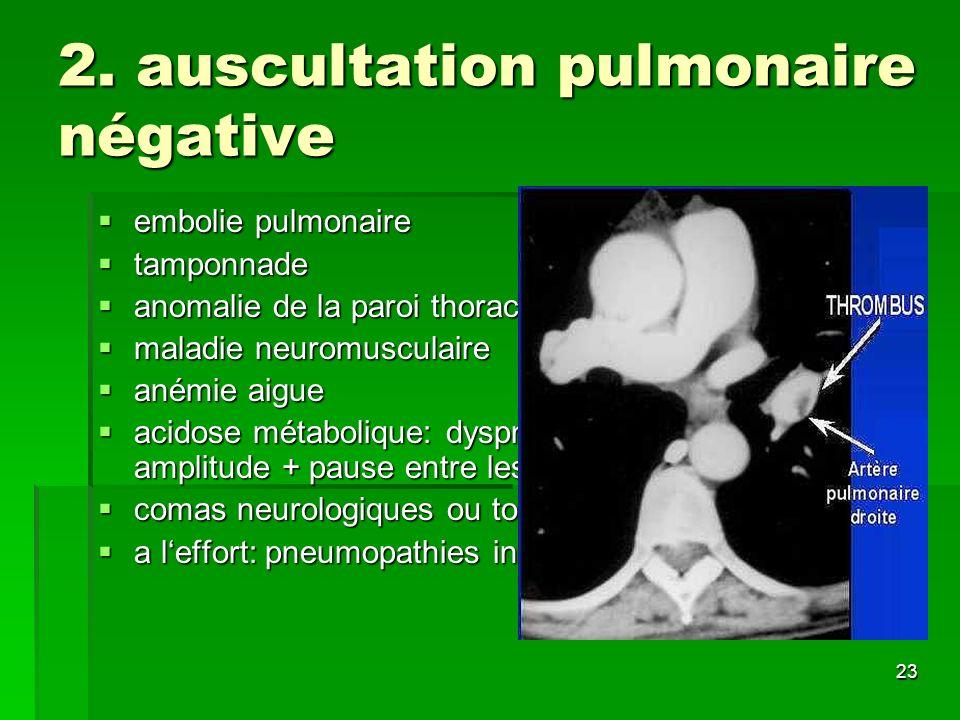 23 2. auscultation pulmonaire négative embolie pulmonaire embolie pulmonaire tamponnade tamponnade anomalie de la paroi thoracique anomalie de la paro