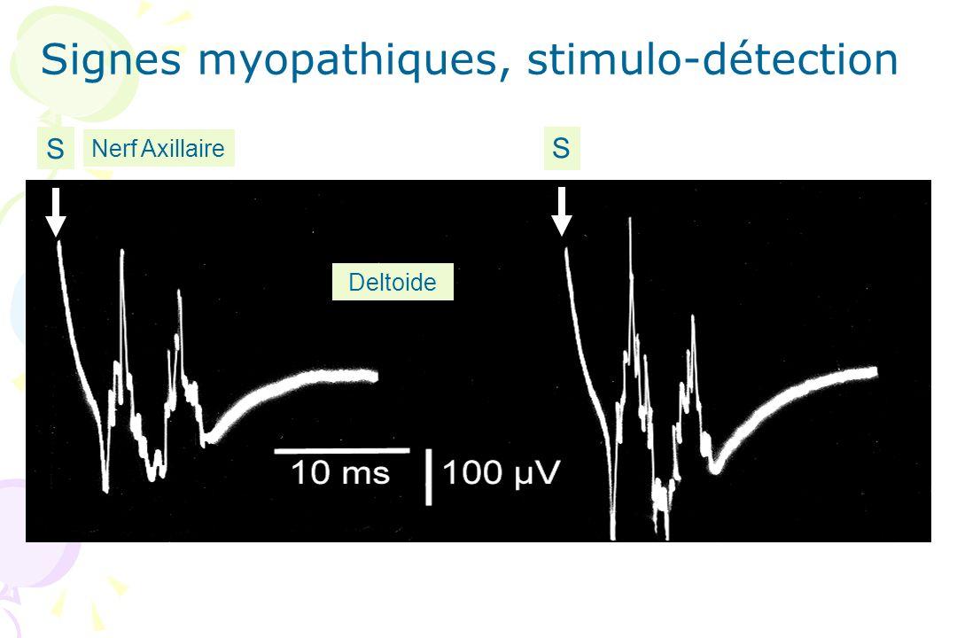 Deltoide S S Nerf Axillaire Signes myopathiques, stimulo-détection
