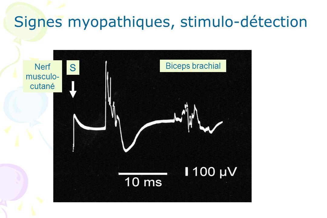 Biceps brachial S Nerf musculo- cutané Signes myopathiques, stimulo-détection