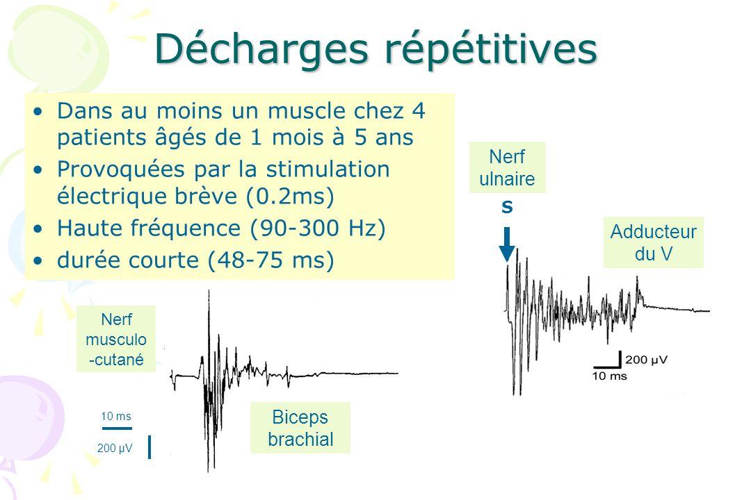 Décharges répétitives Dans au moins un muscle chez 4 patients âgés de 1 mois à 5 ans Provoquées par la stimulation électrique brève (0.2ms) Haute fréq