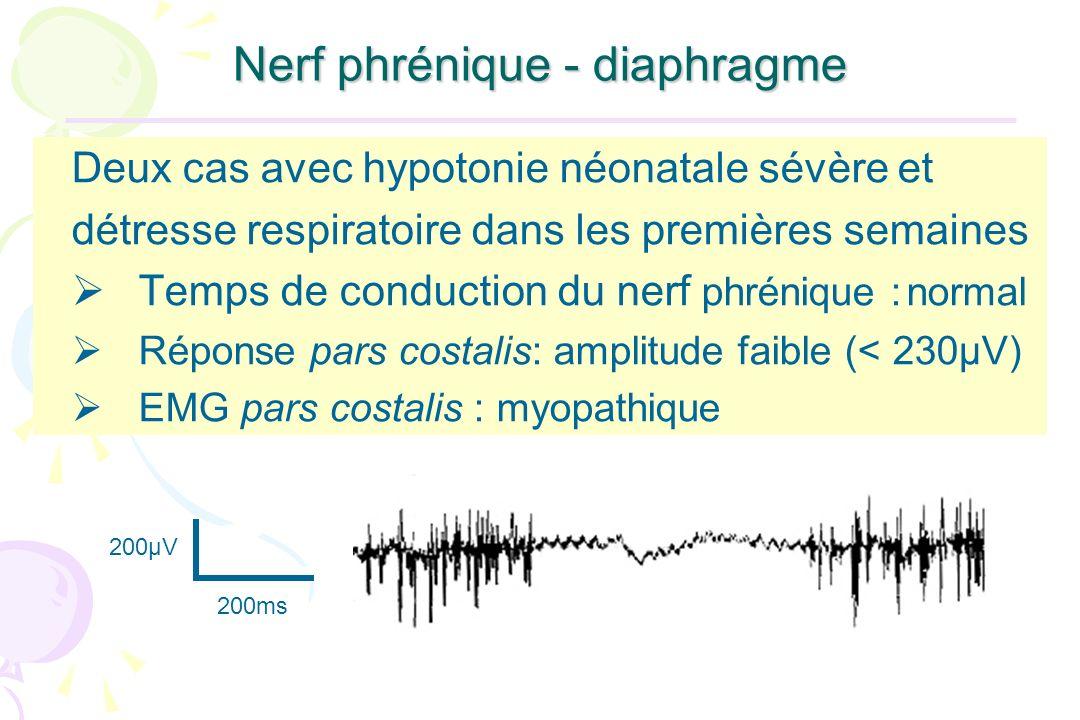Nerf phrénique - diaphragme Deux cas avec hypotonie néonatale sévère et détresse respiratoire dans les premières semaines Temps de conduction du nerf