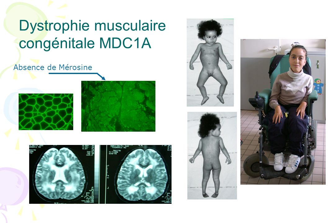VCN selon le type de DMC 7 MDC1A : - ralentissement progressif des VCN motrices dans 5 cas (entre 6 mois et 12 ans) -ralentissement VCN proprioceptive ou sensitive orthodromique dans 3 cas -VCN normales dans 2 cas (à 1 et 11 mois) 4 MDC1C : - VCN motrices et sensitives normales 4 ULLRICH : - VCN à la limite inférieure de la normale dans 2 cas à 2 ans 11 DMC de type indéterminé : - 1 patient mérosine positive avec VCN motrices et sensitives ralenties à 30 jours de vie