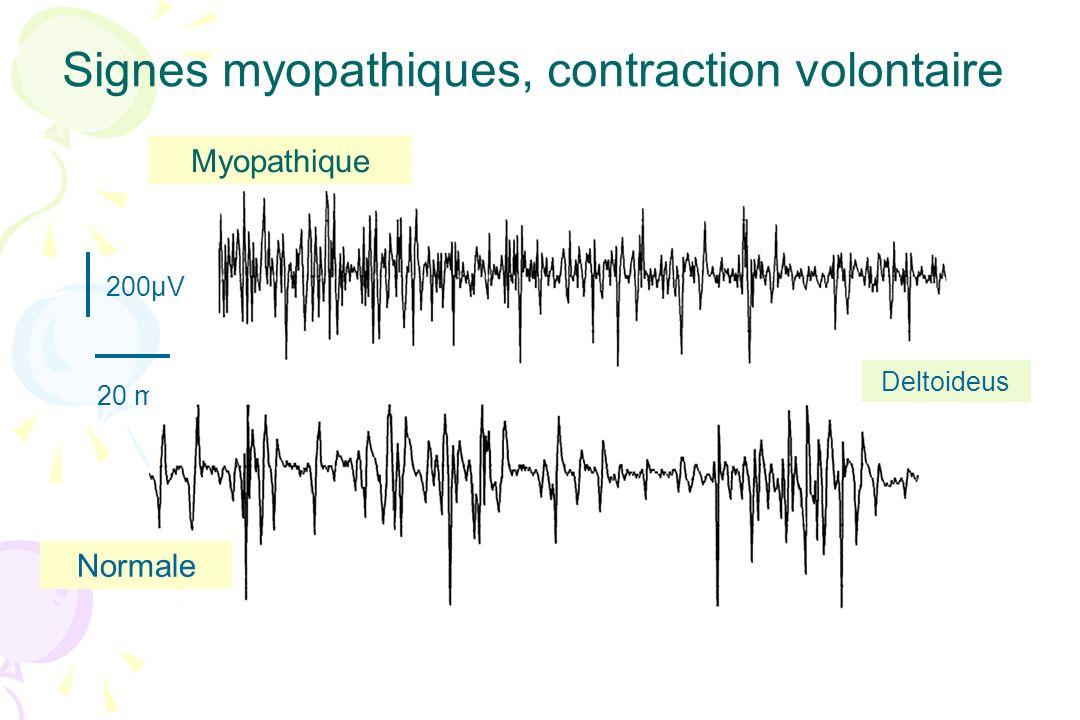 200µV 20 ms Signes myopathiques, contraction volontaire Myopathique Normale Deltoideus