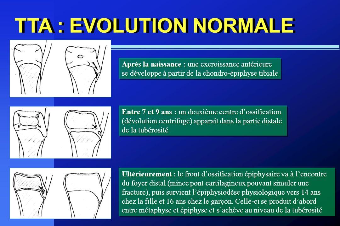 TTA : EVOLUTION NORMALE Après la naissance : une excroissance antérieure se développe à partir de la chondro-épiphyse tibiale Après la naissance : une