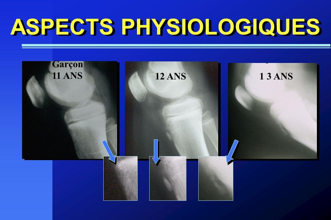 Garçon 11 ANS ASPECTS PHYSIOLOGIQUES 12 ANS1 3 ANS