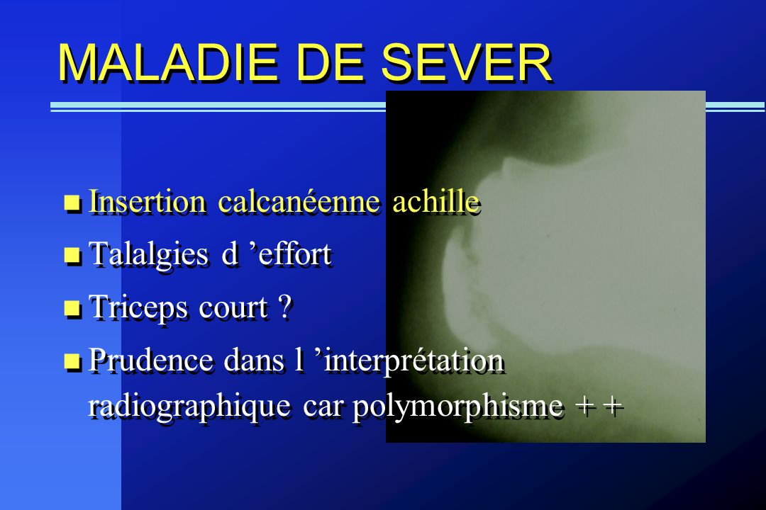 MALADIE DE SEVER Insertion calcanéenne achille Talalgies d effort Triceps court ? Prudence dans l interprétation radiographique car polymorphisme + +