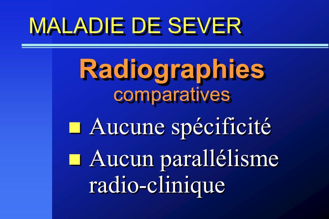 MALADIE DE SEVER Aucune spécificité Aucun parallélisme radio-clinique Aucune spécificité Aucun parallélisme radio-clinique Radiographies comparatives