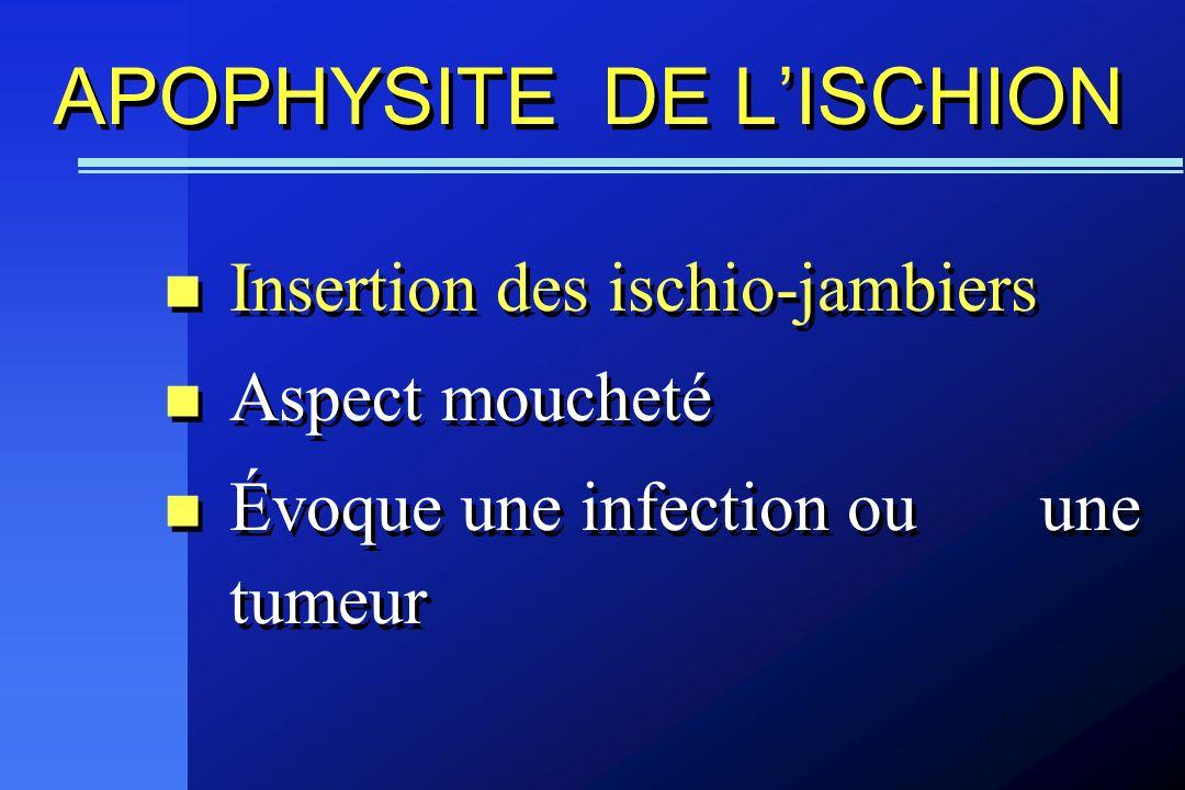 APOPHYSITE DE LISCHION Insertion des ischio-jambiers Aspect moucheté Évoque une infection ou une tumeur Insertion des ischio-jambiers Aspect moucheté