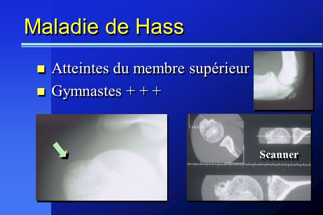 Maladie de Hass Atteintes du membre supérieur Gymnastes + + + Atteintes du membre supérieur Gymnastes + + + Scanner