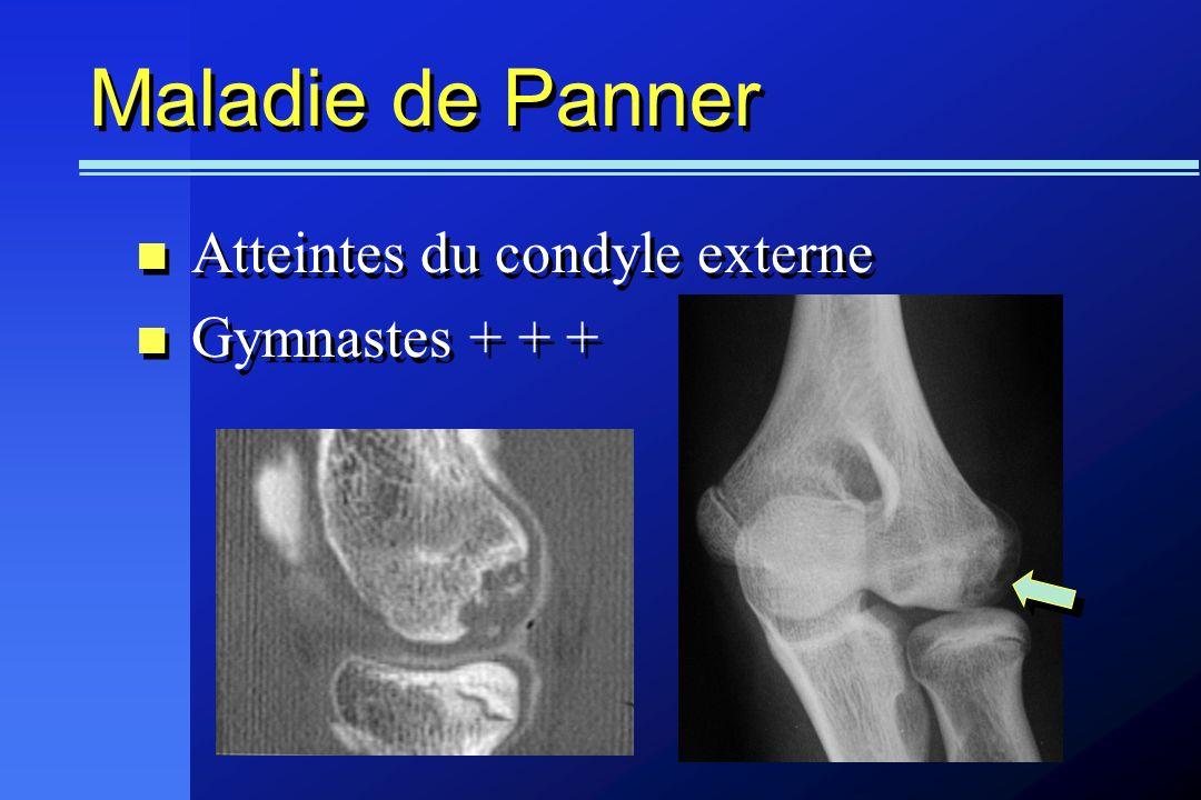 Maladie de Panner Atteintes du condyle externe Gymnastes + + + Atteintes du condyle externe Gymnastes + + +