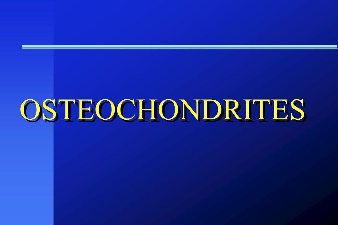 OSTEOCHONDRITES