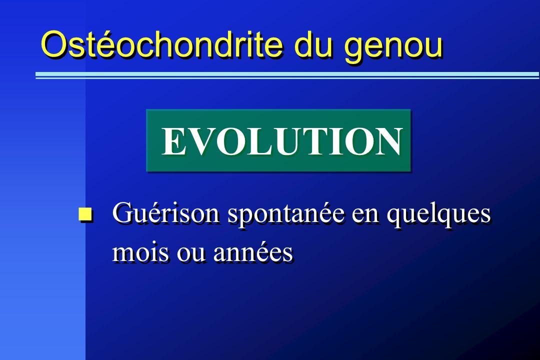 Ostéochondrite du genou Guérison spontanée en quelques mois ou années EVOLUTION