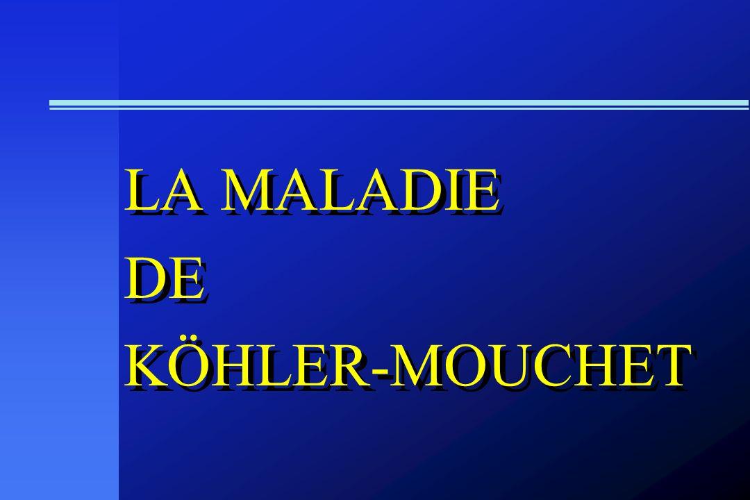 LA MALADIE DE KÖHLER-MOUCHET LA MALADIE DE KÖHLER-MOUCHET