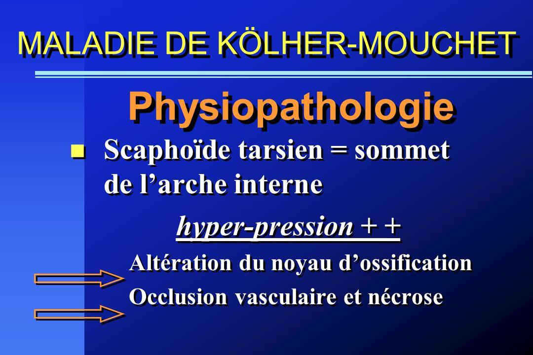 Scaphoïde tarsien = sommet de larche interne hyper-pression + + Altération du noyau dossification Occlusion vasculaire et nécrose Scaphoïde tarsien =