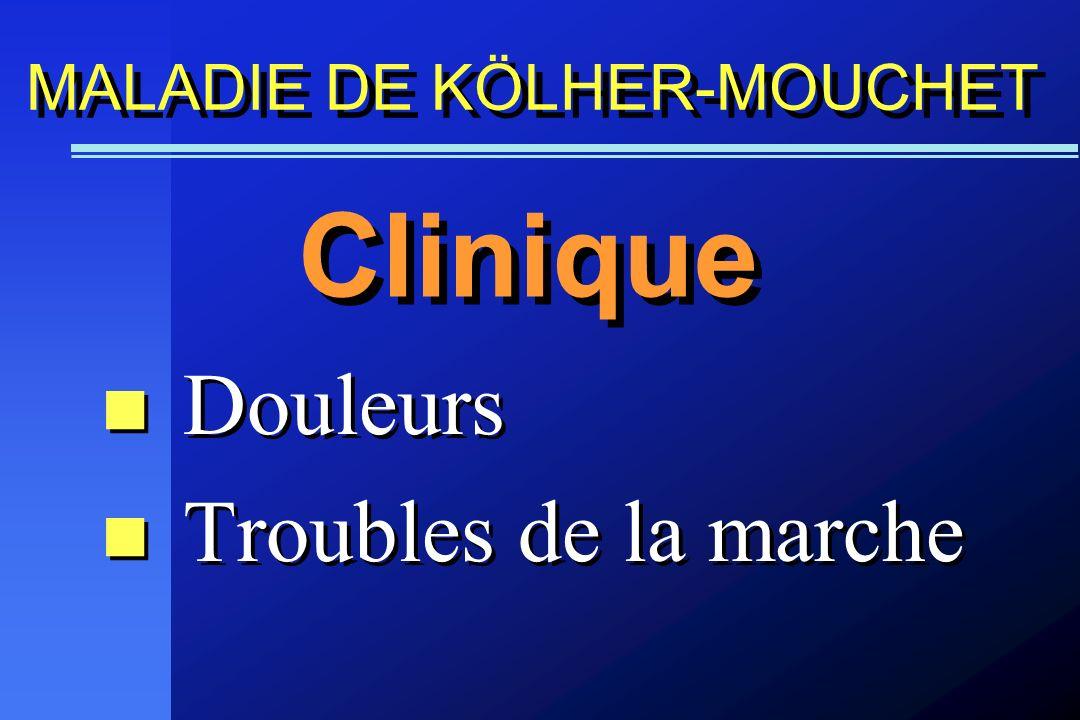 Douleurs Troubles de la marche Douleurs Troubles de la marche Clinique MALADIE DE KÖLHER-MOUCHET