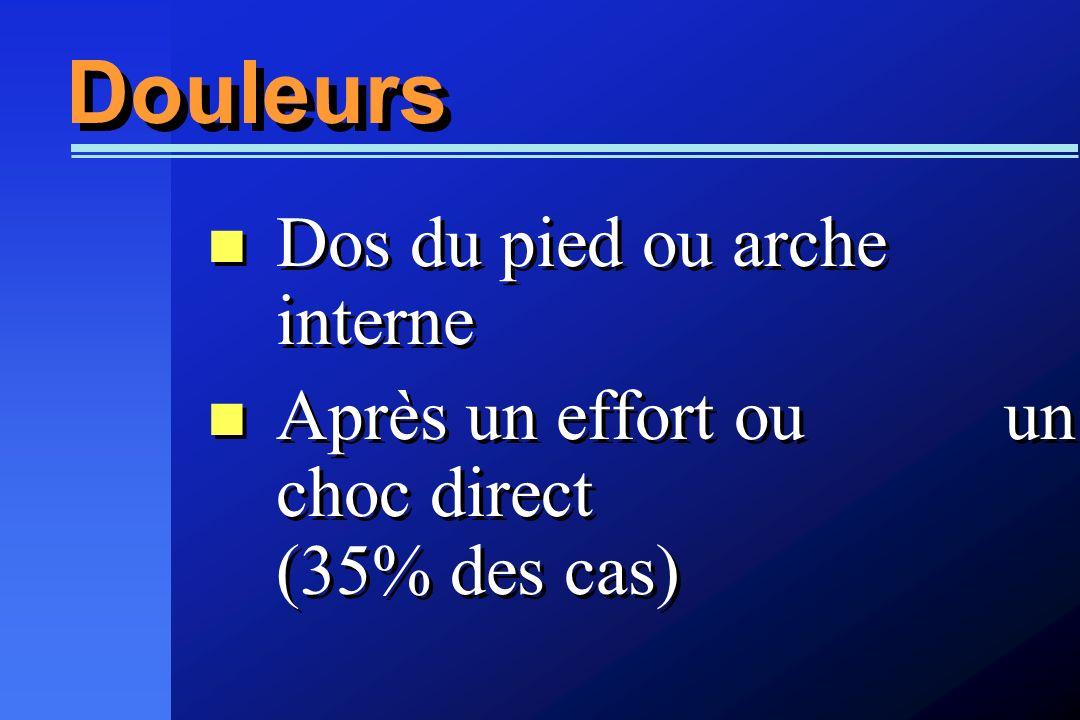 Dos du pied ou arche interne Après un effort ou un choc direct (35% des cas) Dos du pied ou arche interne Après un effort ou un choc direct (35% des c
