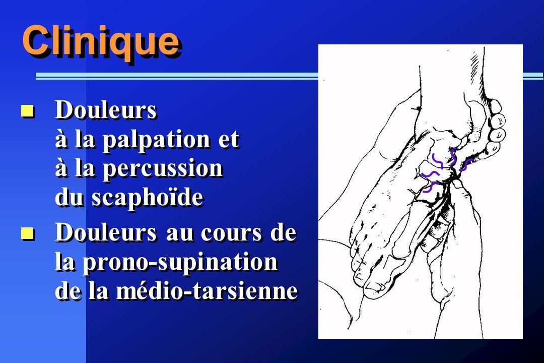 Clinique Douleurs à la palpation et à la percussion du scaphoïde Douleurs au cours de la prono-supination de la médio-tarsienne Douleurs à la palpatio